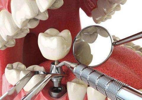 我们推荐种植牙多少钱一颗_医疗器械制造设备相关