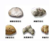 尿结石如何治疗_眼医疗保健服务怎么治-永川区谢远国中医诊所