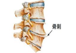 骨髓增生怎么治疗_颈椎增生相关-永川区谢远国中医诊所